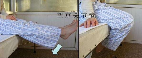 关节镜(1) 膝关节镜手术后康复指南(1)