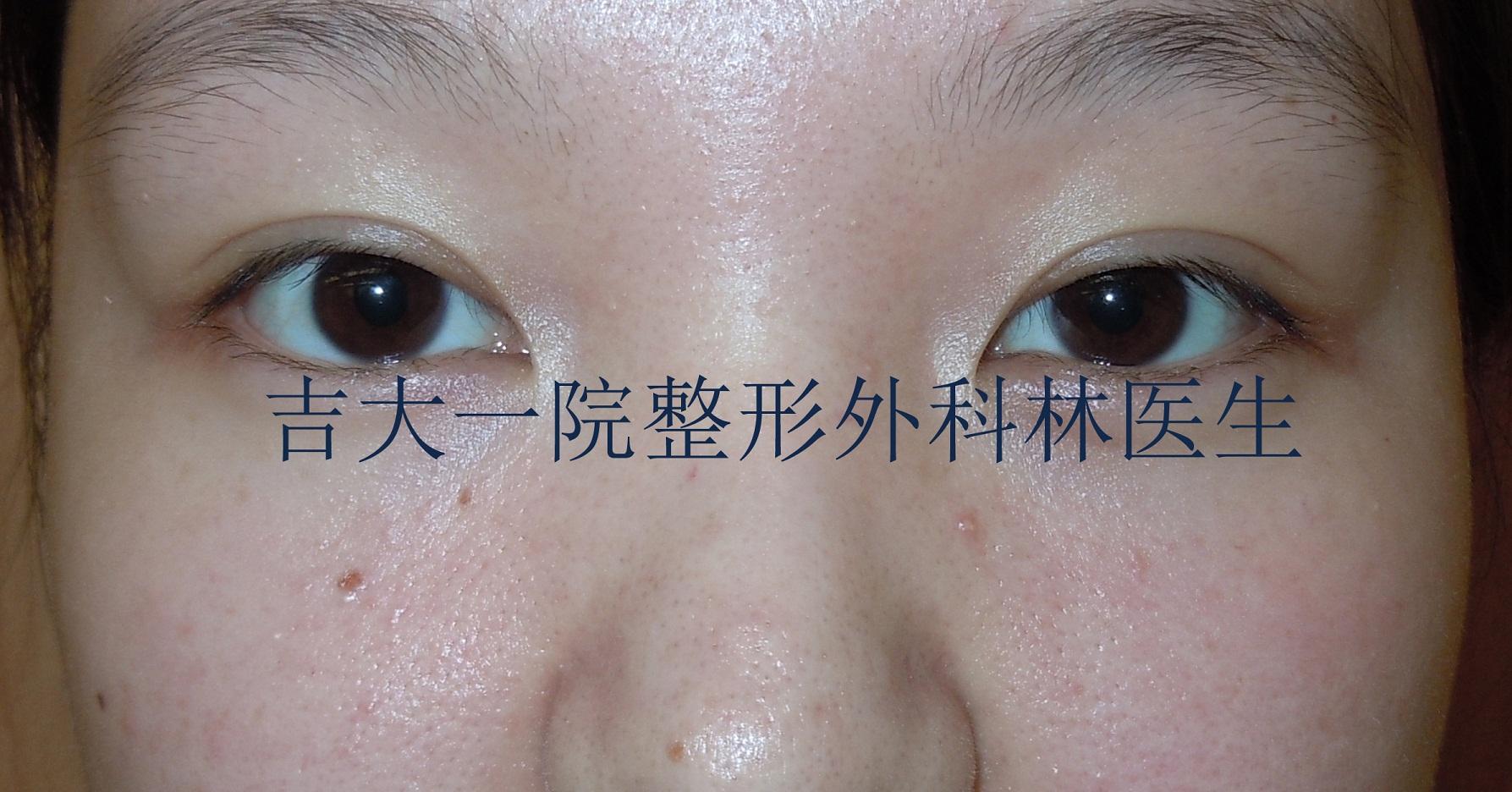 韩式微创三点双眼皮步骤