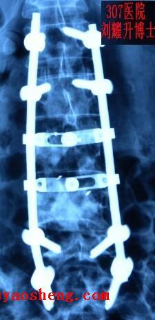 肺癌脊柱转移瘤307医院行微创椎体成形减压内固定粒子