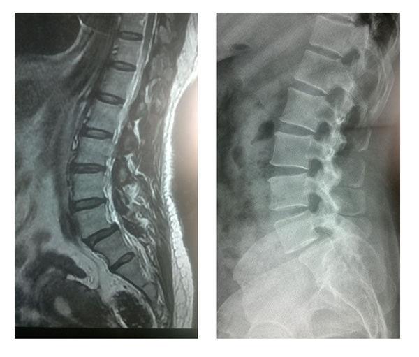 腰5椎体滑脱|腰椎间盘滑脱,突出手术后【腰椎间盘滑脱,突出】(图5)