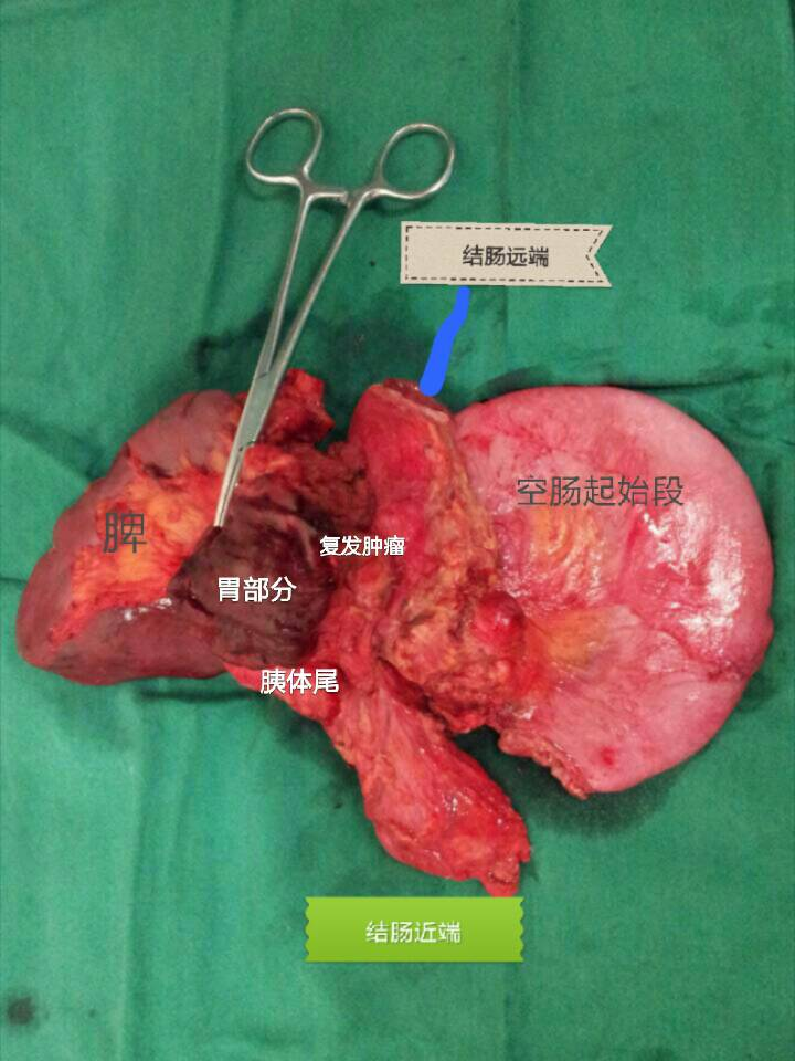 可以预防大肠结肠癌的方法