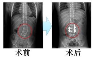 先天性脊柱侧弯的手术治疗_徐州市中心医院王兆红_寻医问药专家网