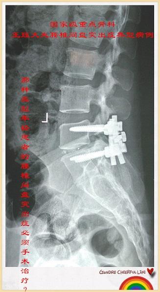 腰椎间盘脱出游离,行髓核摘除固定融合术,术后下肢疼痛麻木明显缓解