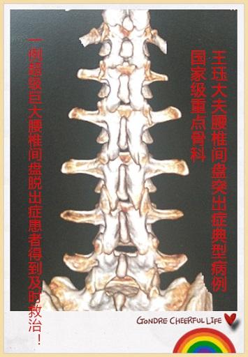 腰椎间盘膨出疗法_文章列表 腰椎间盘突出典型病例 文章详情     腰椎间盘膨出,腰椎间盘