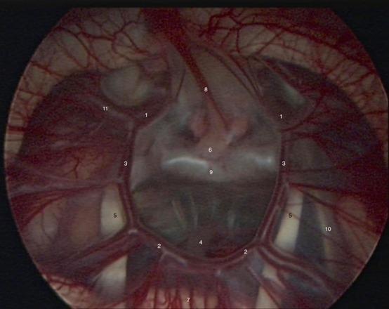 内窥镜下见 Willis 环,显示出颈内动脉(1)、大脑后动脉(2)、后