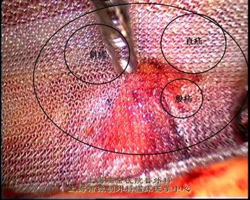 腹腔镜腹股沟疝修补术的几种方式介绍 可归纳为6种方法: 内环口关闭术:相当于开放式手术中疝囊的高位结扎,因未对腹股沟管后壁进行修补,仅适用于小儿腹股沟斜疝。 植入物填塞术(Plug and Patch):将植入物直接植入缺损处。因植入物容易移位,且修补局限,故复发率和再发率高,目前已很少应用,建议不要用这种方法进行腹股沟疝修补。