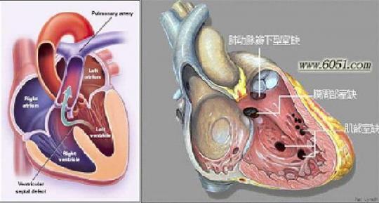 中,小型缺损心脏和大血管形态可基本正常,或有不同程度的左室和左房