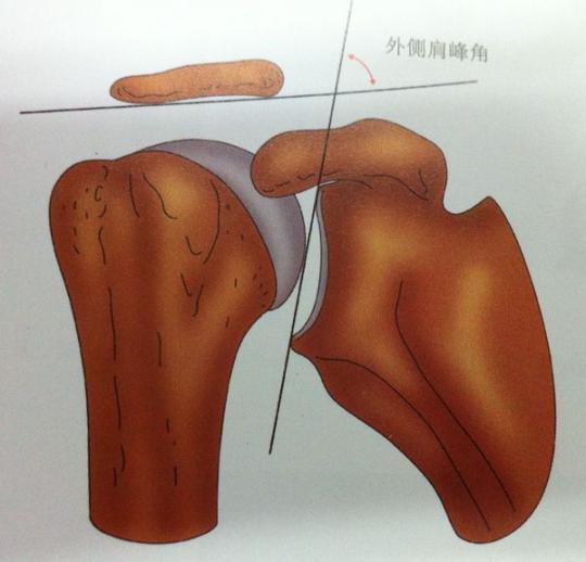 肩关节周围炎疼痛的原因是什么
