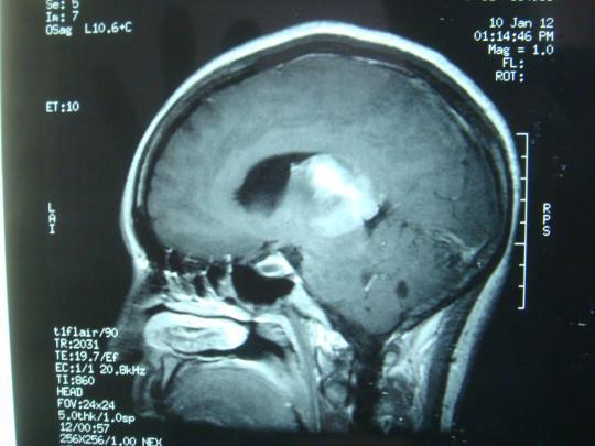 肿瘤的形态手绘图