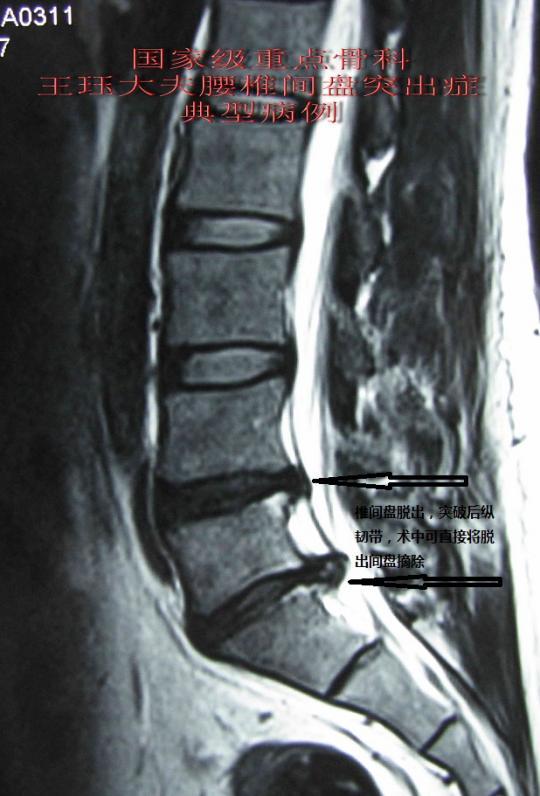 病例26:髓核组织脱出突破后纵韧带病例-----术后疗效佳