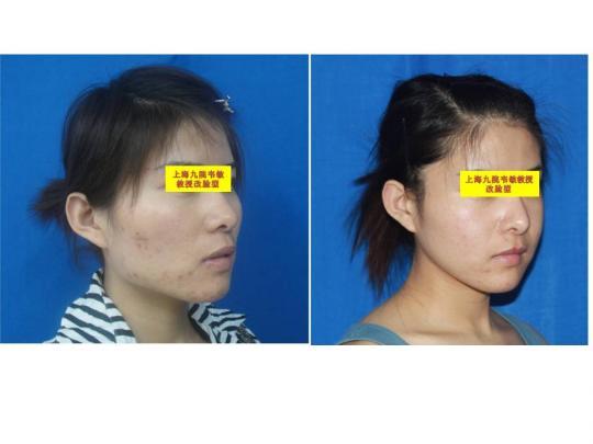 颧骨,下颌角,咬肌切除,综合隆鼻,手术前后照片对比.