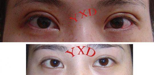 韩式双眼皮对比_重睑(双眼皮)手术效果展示_浙一医院叶秀娣_寻医问药专家网