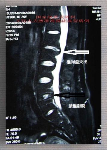 腰椎间盘滑脱图片_病例45:男,26岁,腰痛,滑脱或椎间盘突出,谁是真凶?_郑州 ...