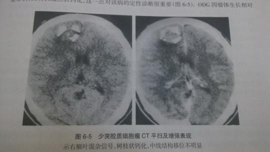 少突胶质细胞肿瘤的表现及治疗