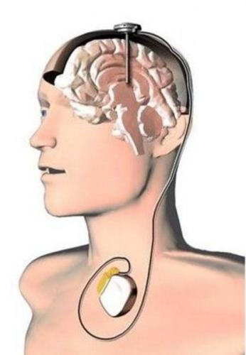 """""""脑深部刺激系统""""俗称""""脑起搏器"""",其外形及工作原理与心脏起搏器类"""
