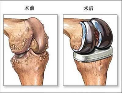 人工关节,这样术后髋关节重新恢复了其完美地圆顶,改善关节活