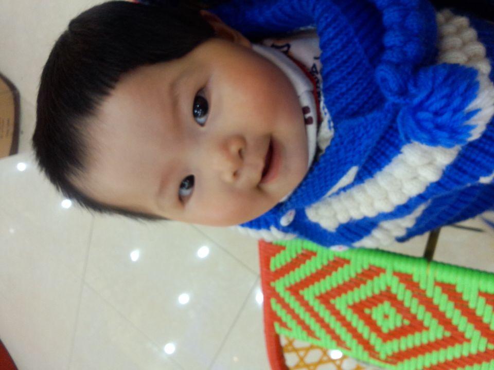 宝宝半边头皮是黑色的_发型设计