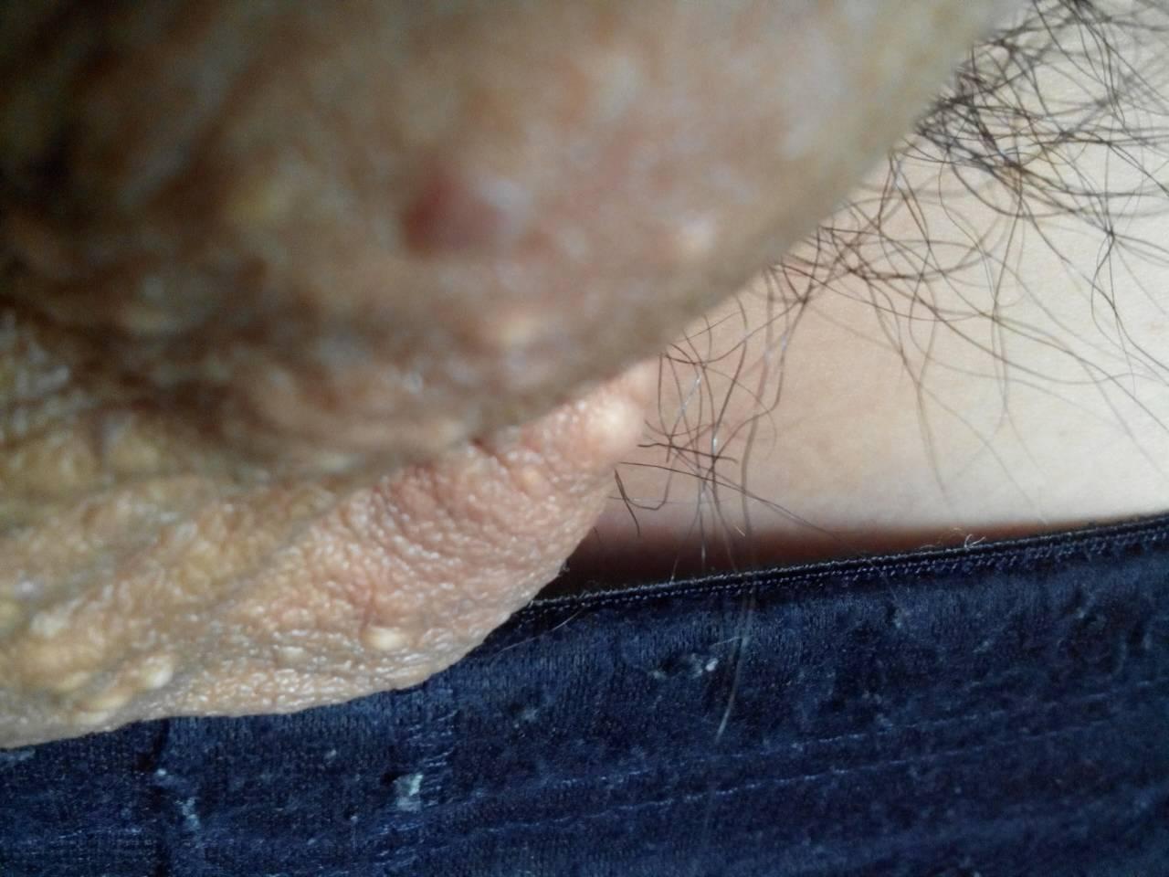 哪些皮肤病会传染?