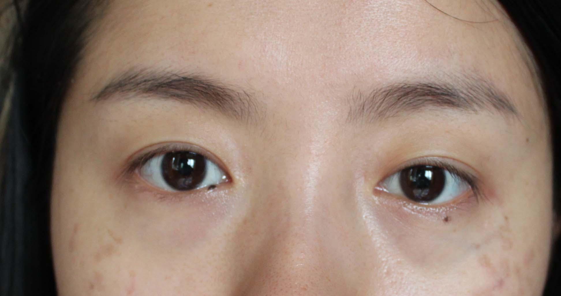 贴了一个礼拜的双眼皮贴导致眼皮松弛,还能恢复吗 不要做手术