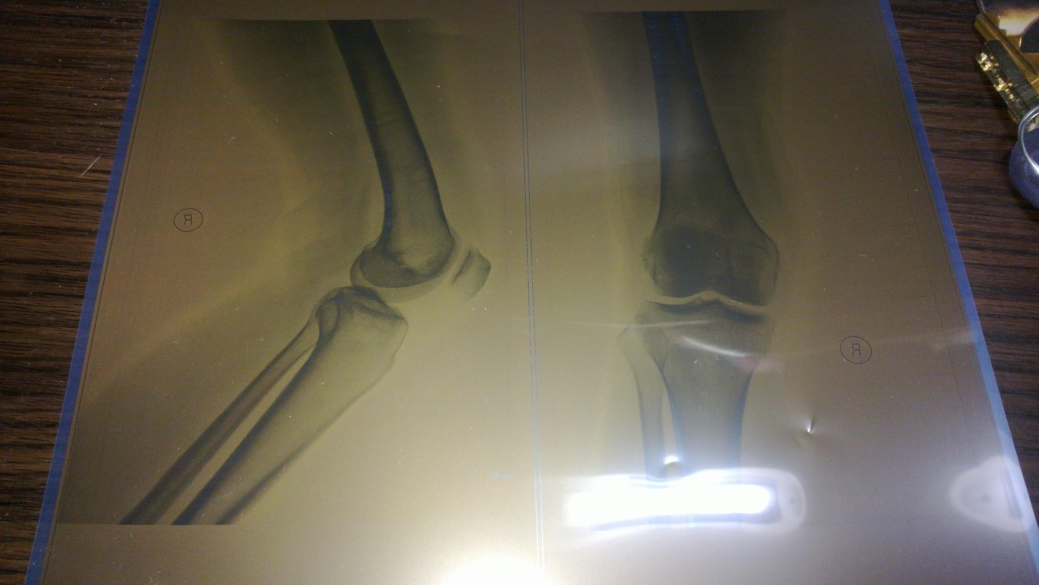 问题:膝盖骨磨损