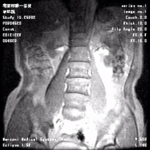 腰椎间盘滑脱图片_腰椎45椎体图片解剖图-腰椎椎体解剖图_椎体解剖图_腰椎第4节 ...