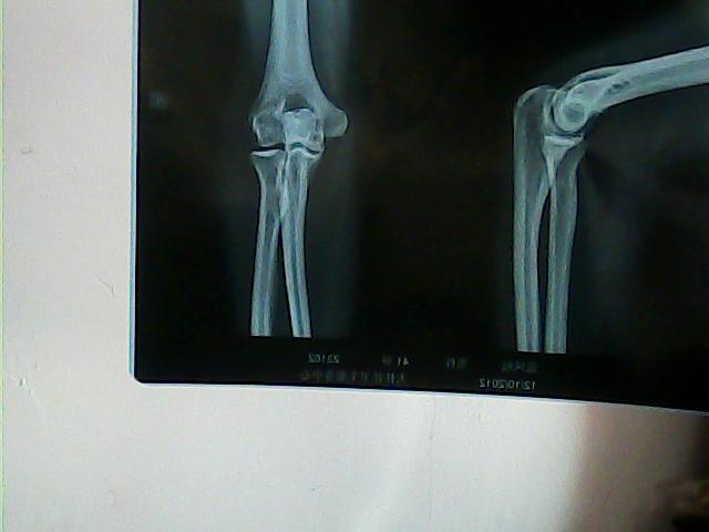 问题:肘关节损伤