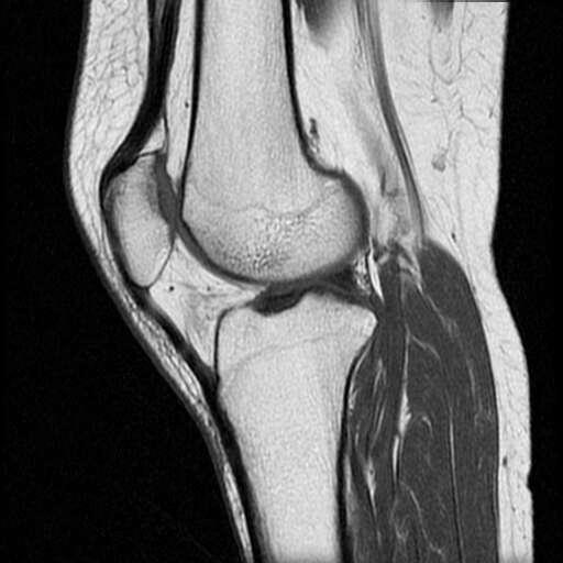 膝关节半月板损伤怎样治疗 寻医问药网找专家