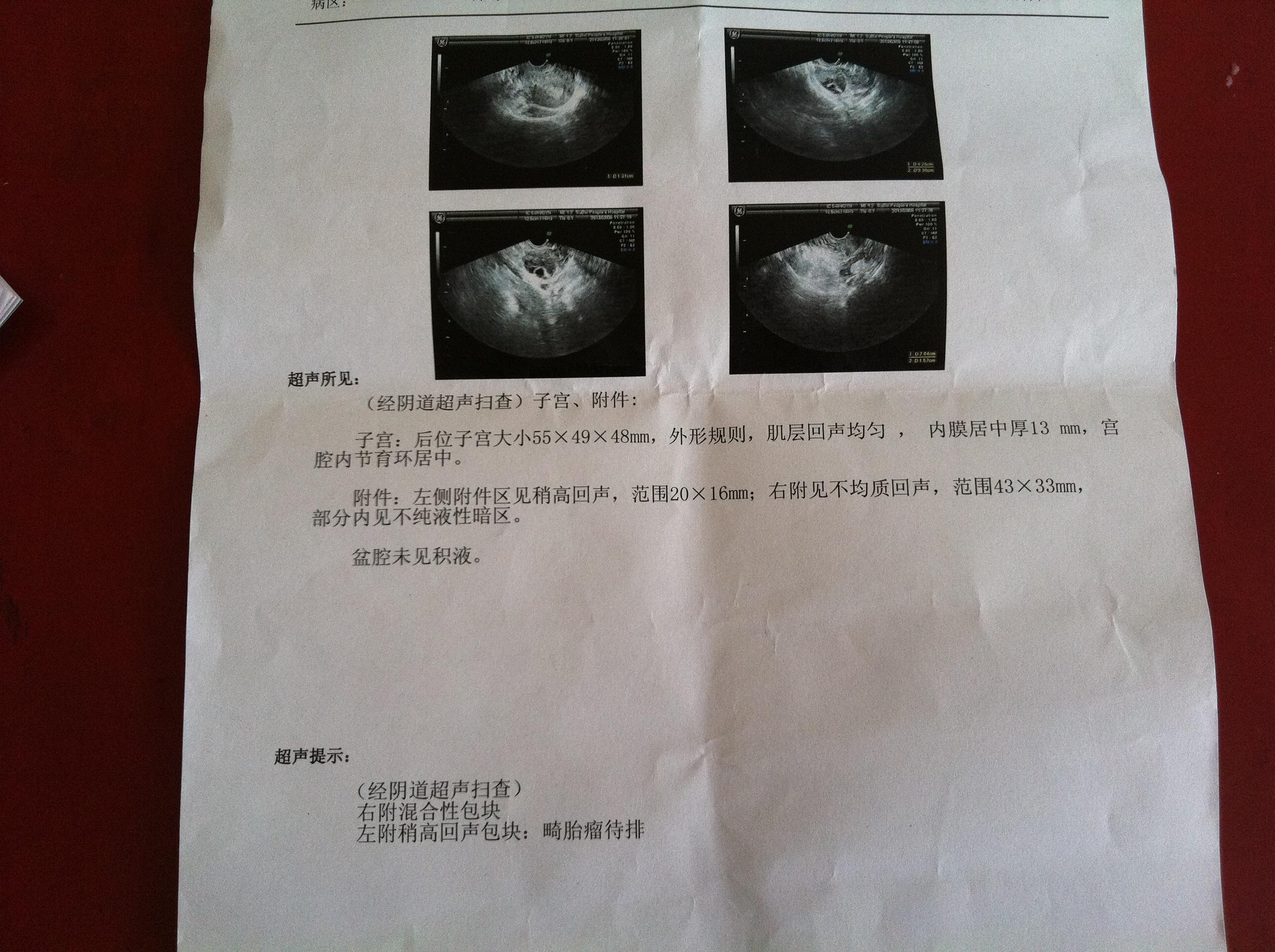 脐胎瘤的超声图谱