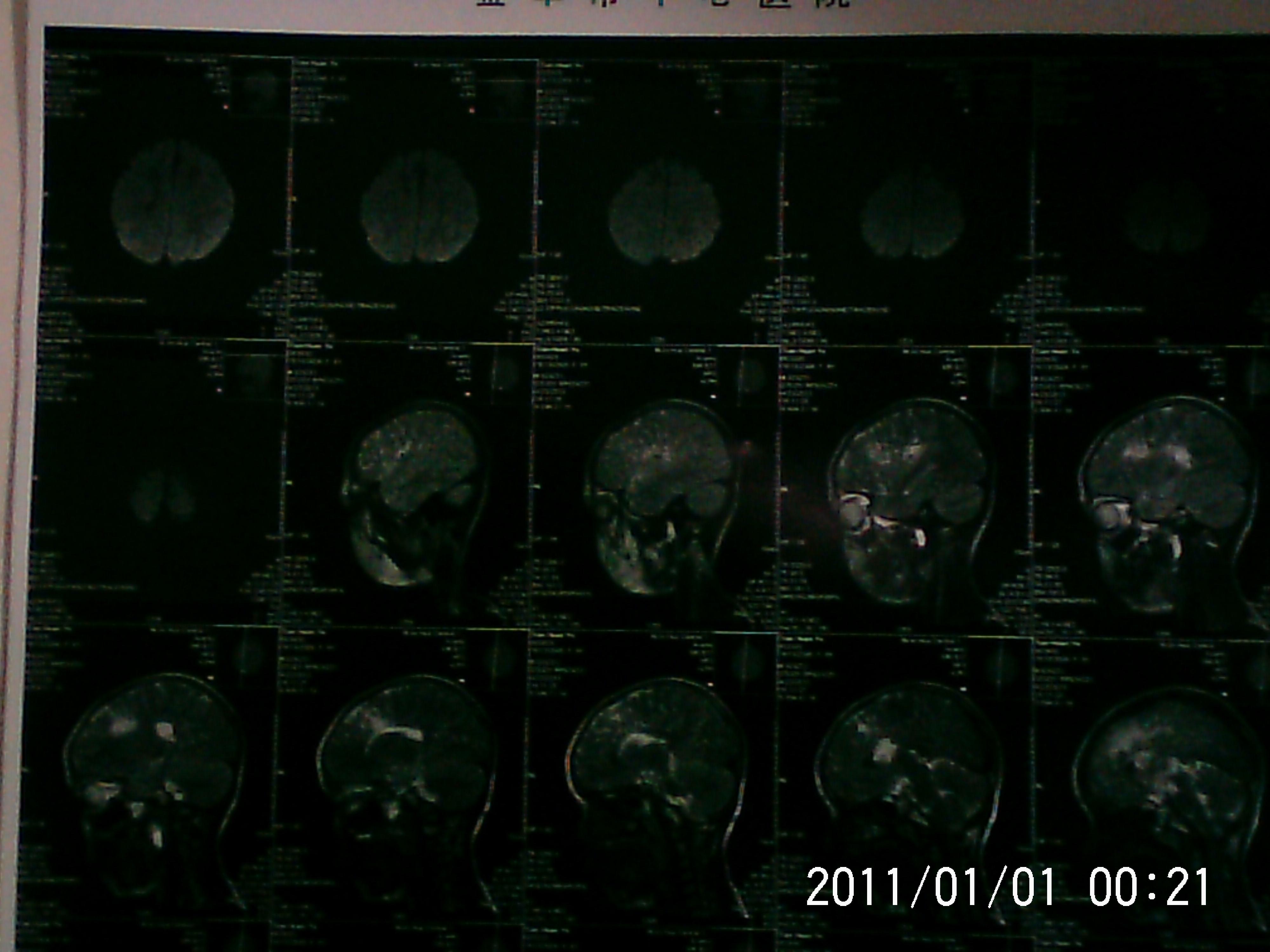 小儿脑两侧额叶发育不良.能治疗吗?