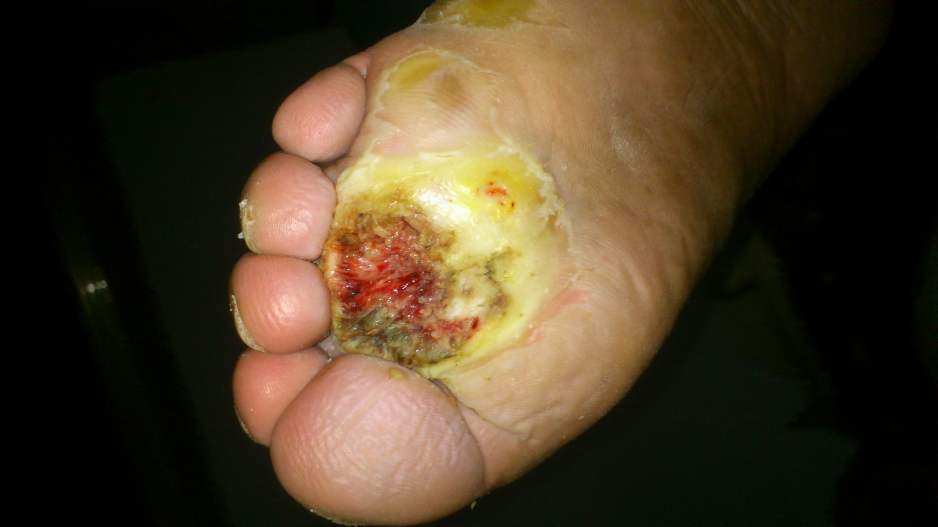 脚坏死一直在腐烂,怎么样才能治好