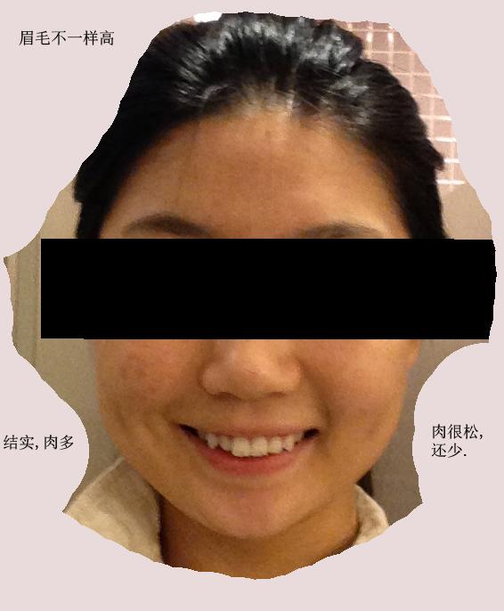 问题:左右脸不对称