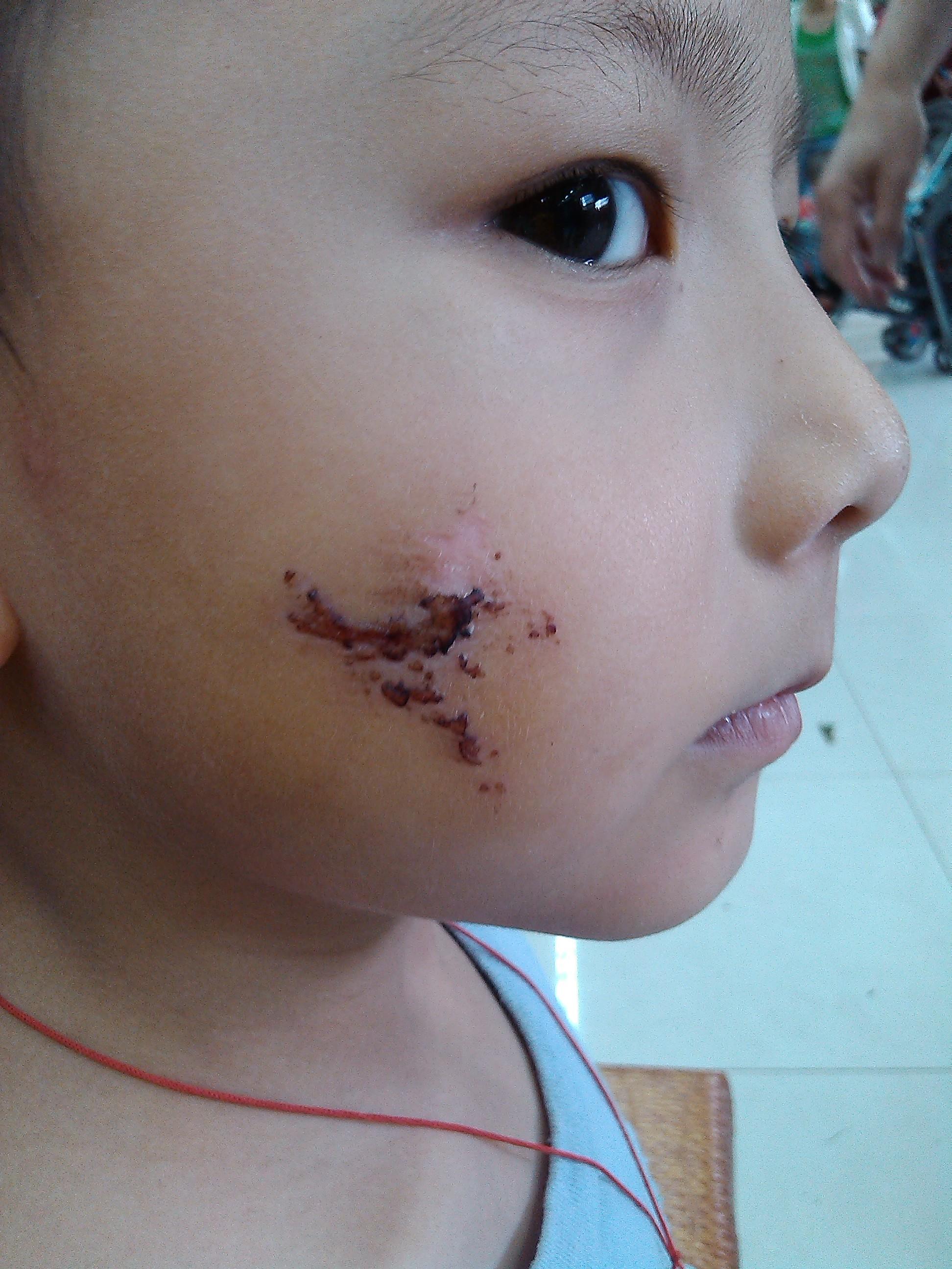 但是脸上有比较深的疤痕
