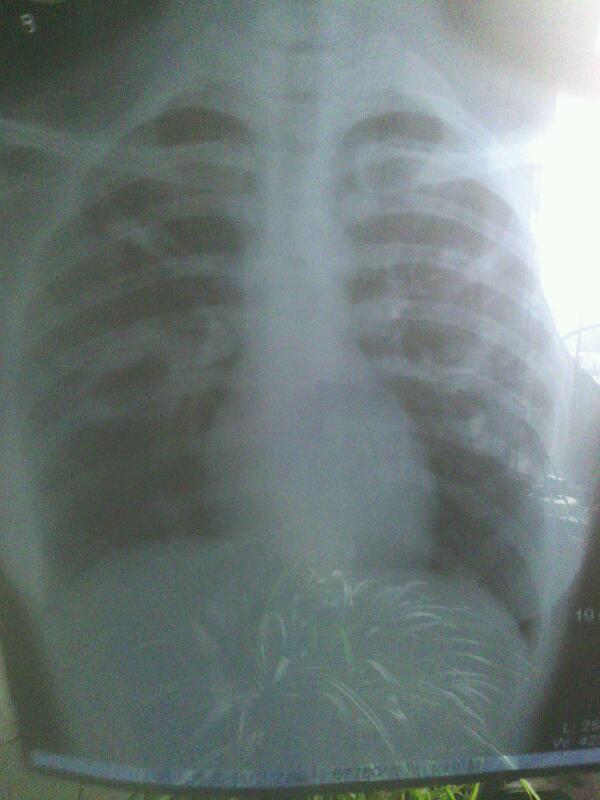 左肺中野可见斑片状密度增高影