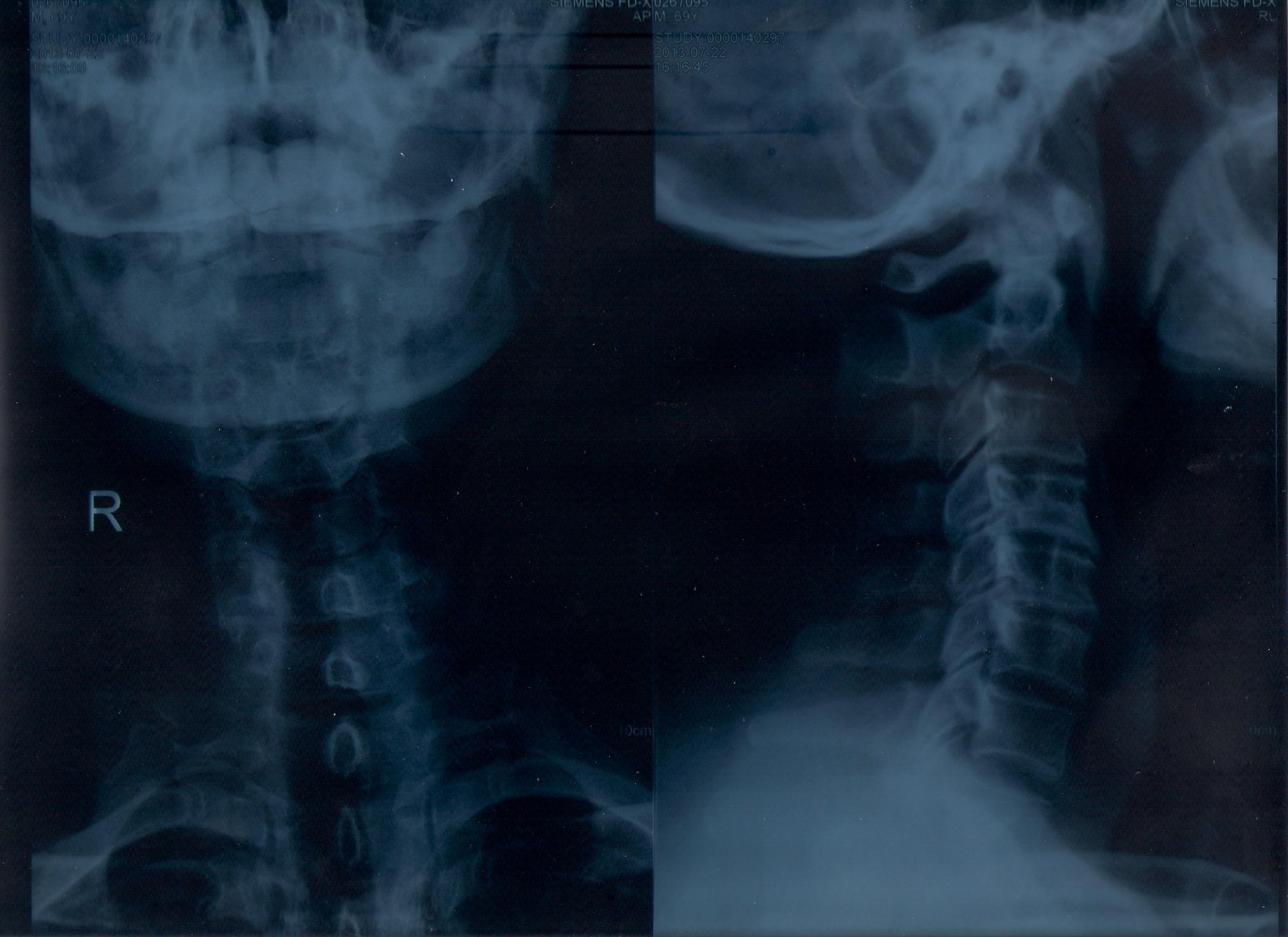 颈椎压迫神经 所患疾病:颈椎压迫神经 病情描述(发病时间、主要症状、症状变化等): 一个半月以前第一次发病,脖子酸痛,不能扭动,背后有个肿块,右手臂和手指酸麻胀痛。举起右手听见咔咔的声音。右手基本不能动,躺着比较没有那么痛,动一下就很痛。 曾经治疗情况和效果: 拍了s光片医生说是颈椎压迫神经,做了十次的针灸也吃了祛风止痛胶囊和骨康胶囊还有外贴的药,还有维生素b1,b3,b12.