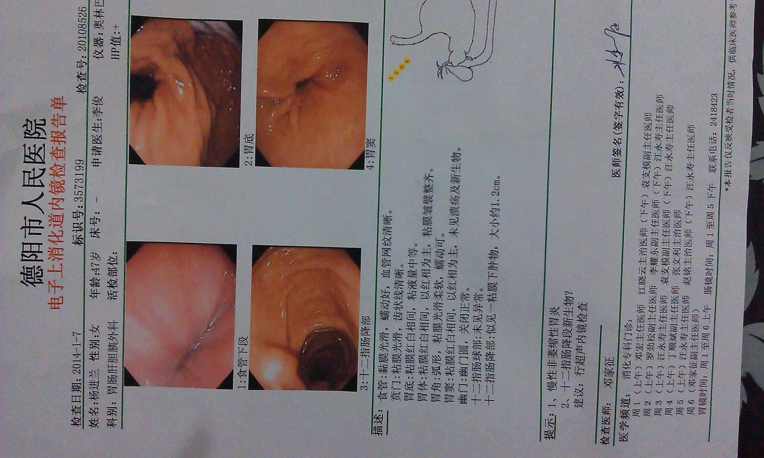 右侧肋骨下方疼痛是怎么回事 傍有呕吐 快速问医生 免费咨询图片