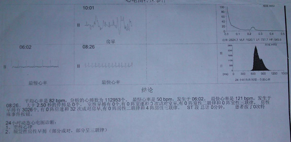 人体各阶段正常血压 正常血压是多少 人的正常血压是多少 人体正常血