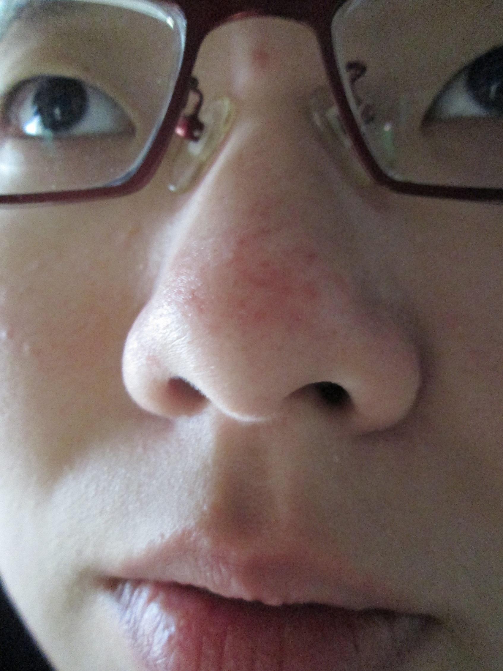 感冒鼻塞的原因图解