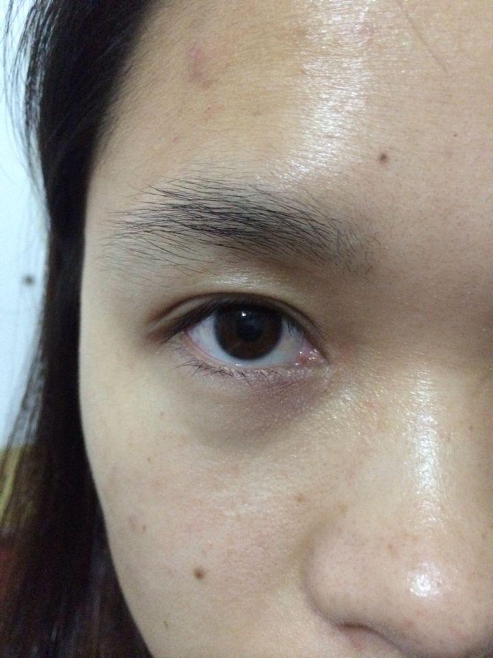 民健身中心 切双眼皮后的增生图