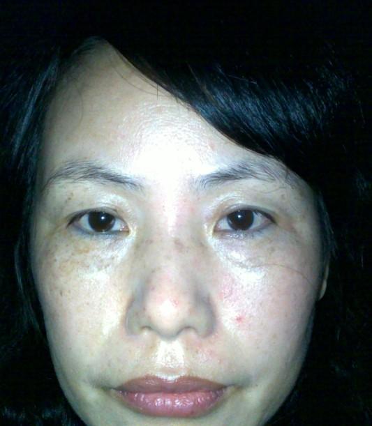 我脸上不知是蝴蝶斑还是原来做激光祛斑留下的印子 快速问医生 免费