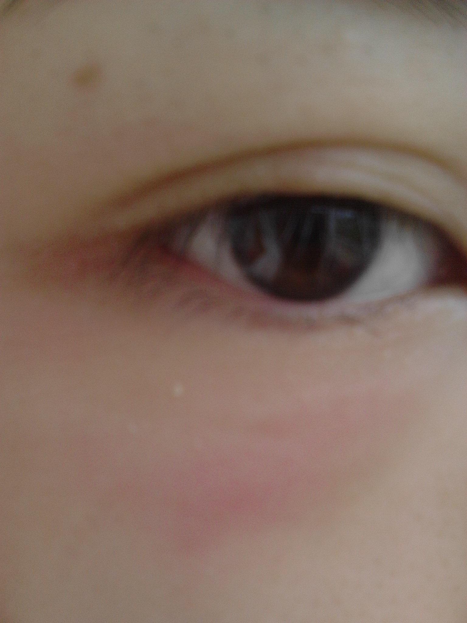眼部皮肤过敏_皮肤过敏搽什么-皮肤过敏涂什么药膏-皮肤过敏可以用冰敷吗 ...