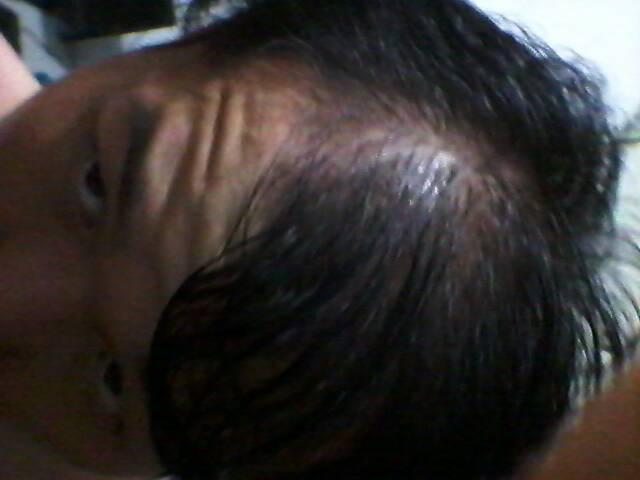 如何预防掉头发
