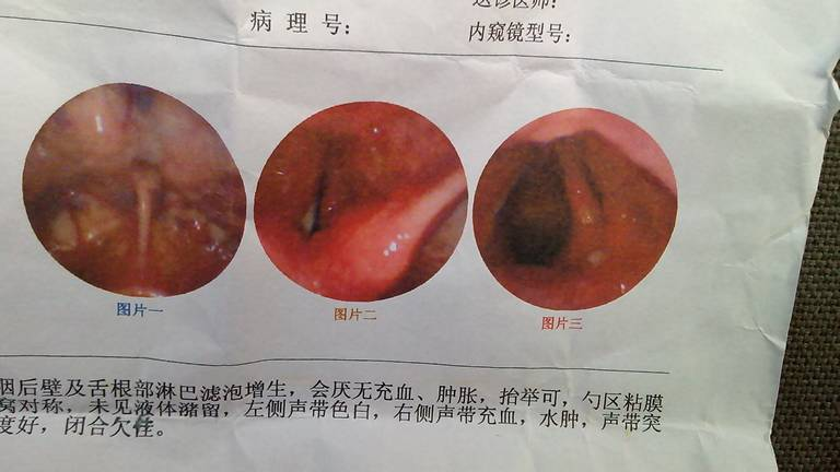 嘴巴到喉咙内部结构图